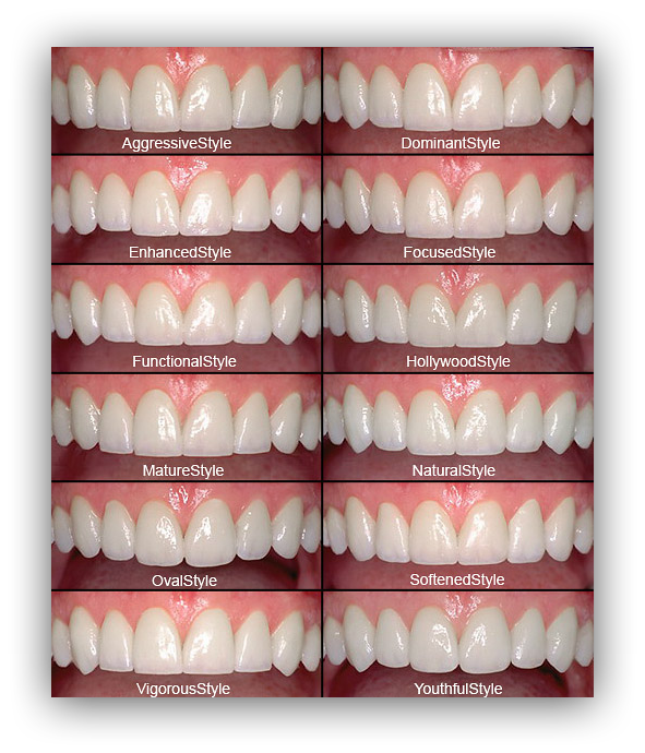 Vanity and straighter teeth